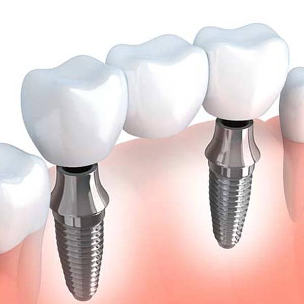 Implant Supported Bridge Graphic