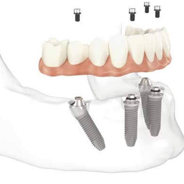 Lower Arch Graphic Showing 4 Implants and Teeth